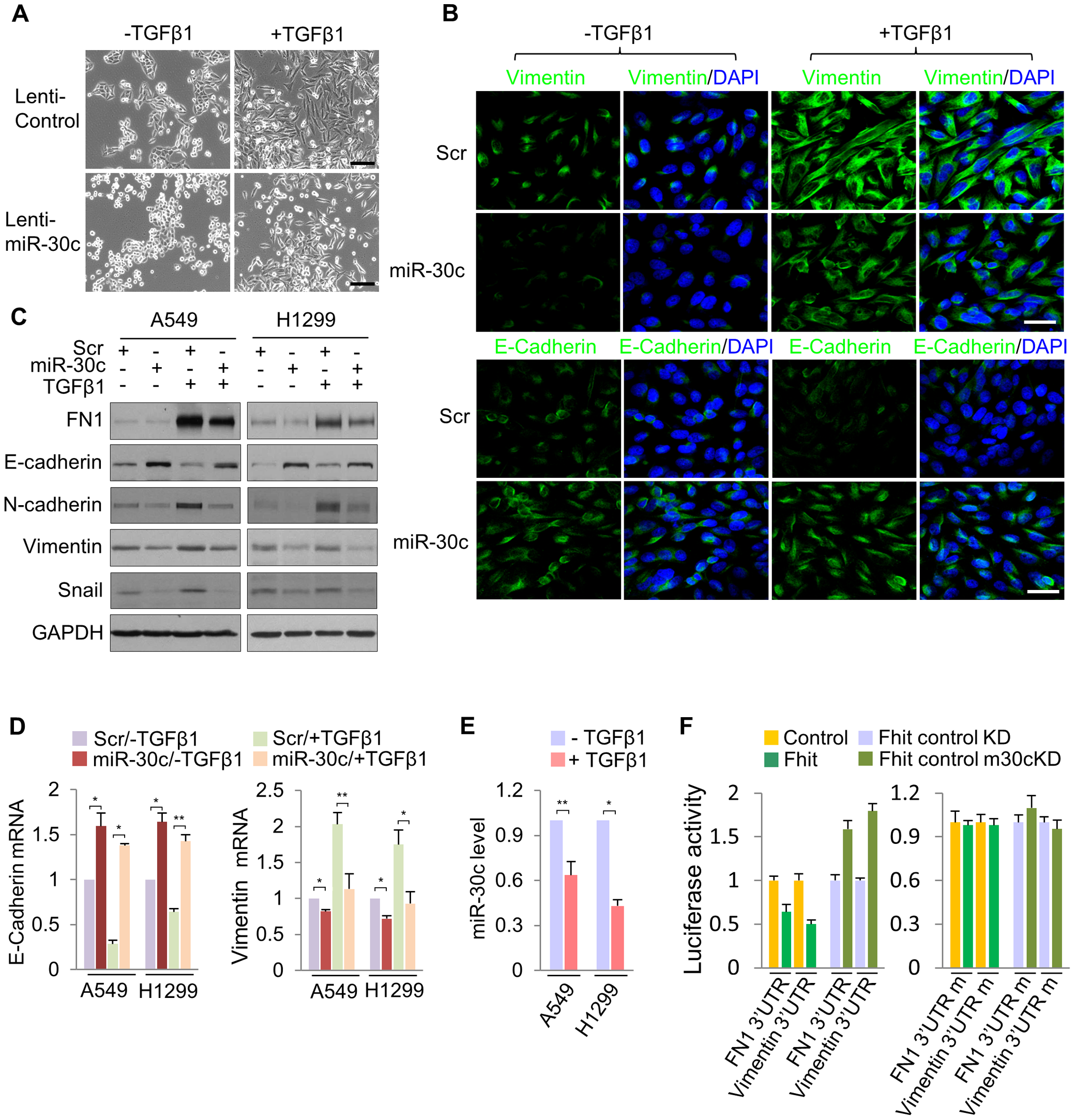 miR-30c inhibits TGF-β-induced EMT through direct targeting of Vimentin and Fibronectin.