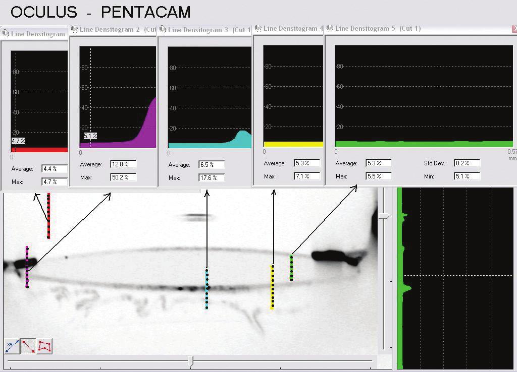 Měření denzit jednotlivých prostředí oka. Použit standardní program Pentacamu HR.