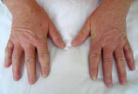 Sklerodermické postižení prstů ruky (sklerodaktylie) u nemocné se systémovou sklerodermií. Změny kůže jsou také patrny na dorzu rukou. Archiv autora