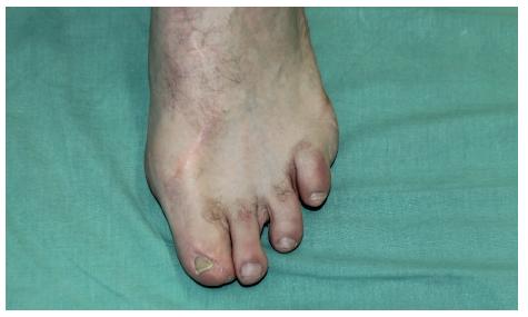 Pohled na zhojené donorské místo Fig. 5: Harvested area on the foot