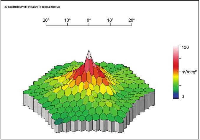 Obr. 3e. MfERG pravého oka zdravého probanda: Normální 3D obraz s maximem v oblasti foveoly a směrem do periferie postupně klesající aktivitou