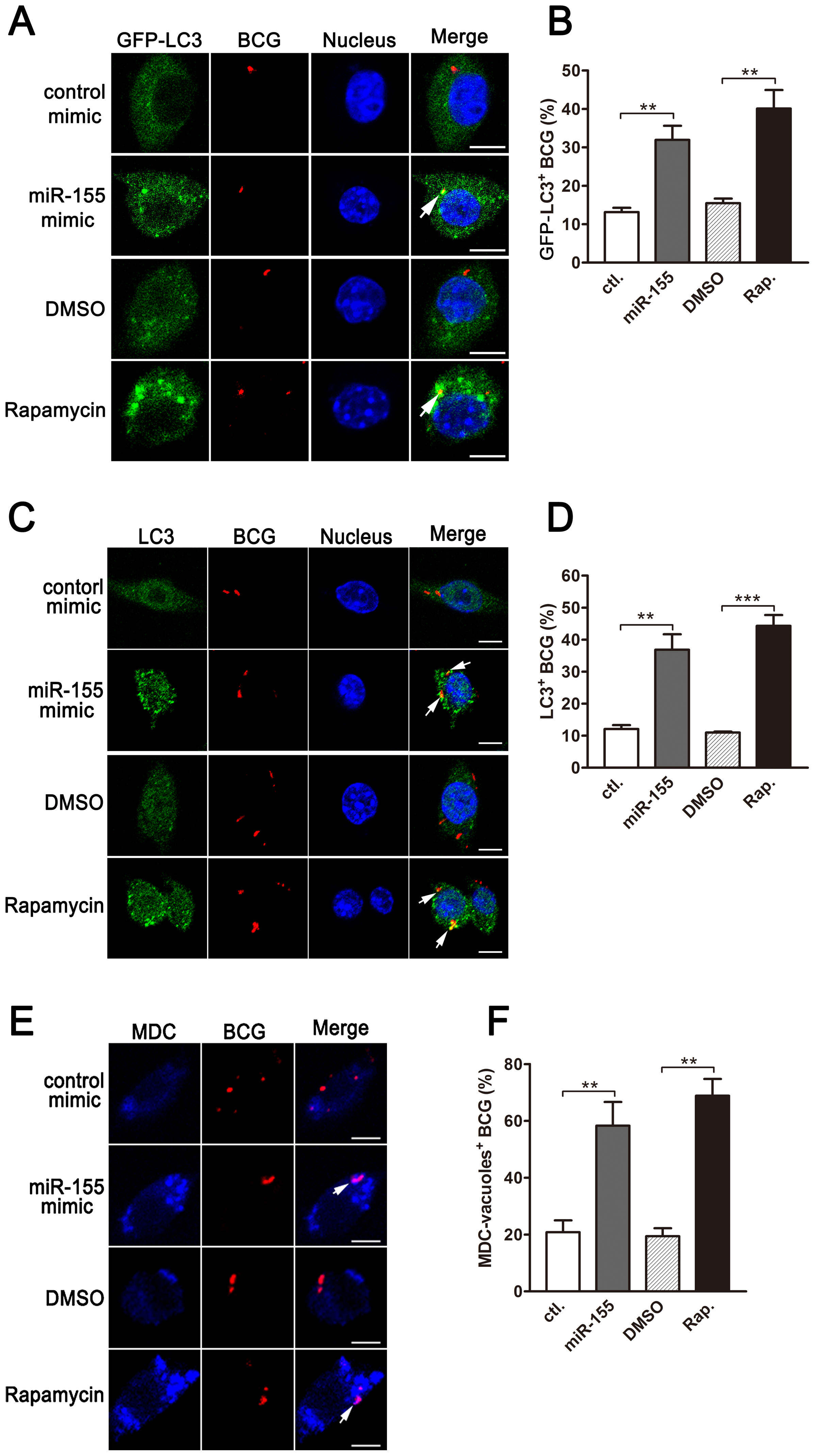 miR-155-induced autophagy promotes the formation of mycobacterial autophagosomes.