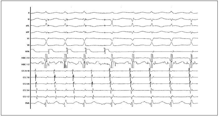 Ukázka indukce typické AVNRT v průběhu EFV při vzestupné stimulaci síní.