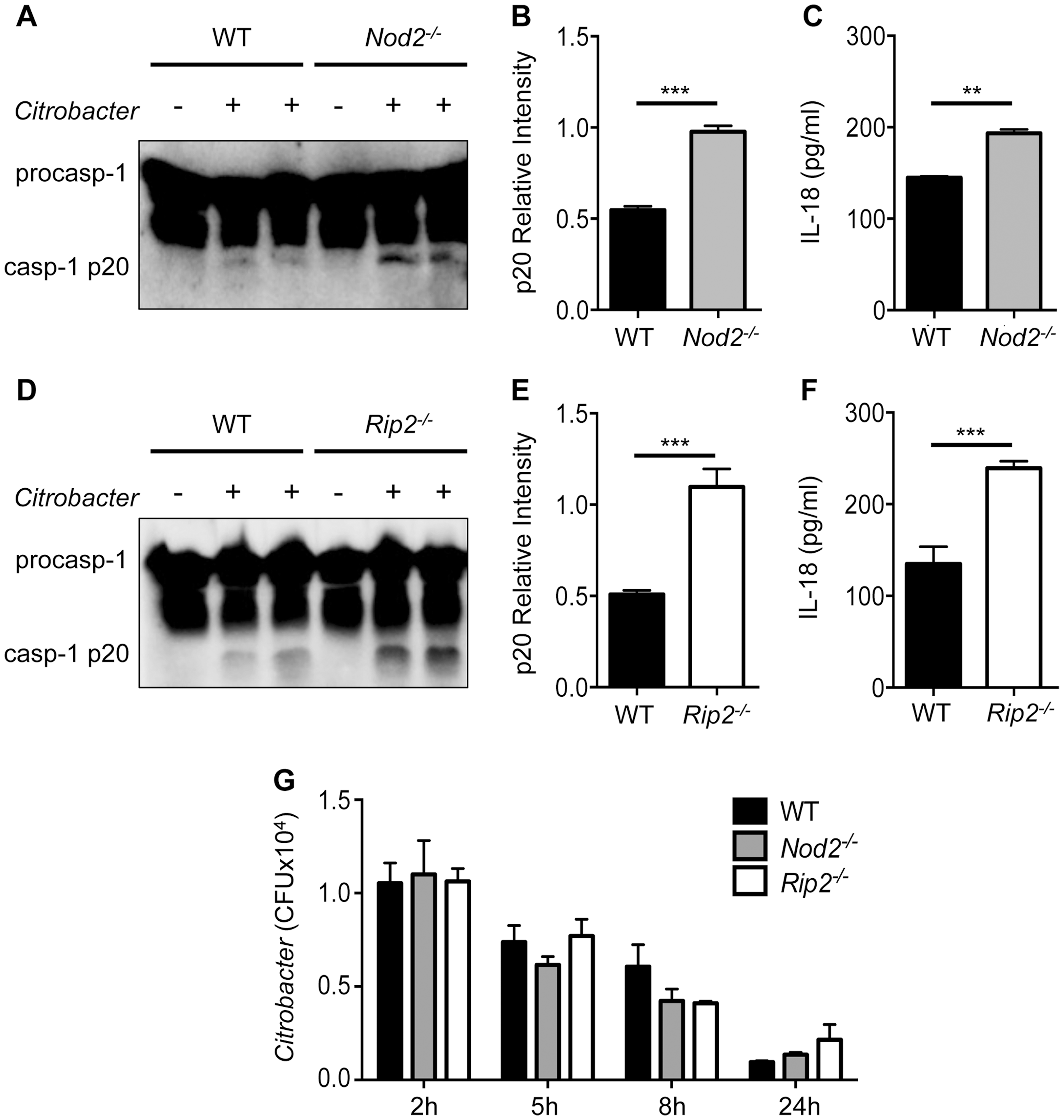 Enhanced inflammasome activation in <i>Nod2<sup>−/−</sup></i> and <i>Rip2<sup>−/−</sup></i> BMDMs.