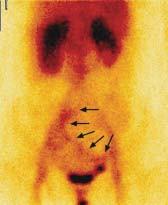 Na statickém scintigramu za 2,5 hodiny po i.v. aplikaci radiofarmaka se extravazát autologních, radioaktivně označených erytrocytů dostal střevní peristaltikou do oblasti ilea a ilické tepny vpravo.