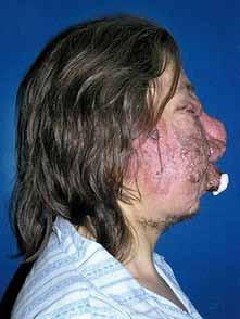 Angiomatóza obličeje, pohled z boku, stav před léčbou.