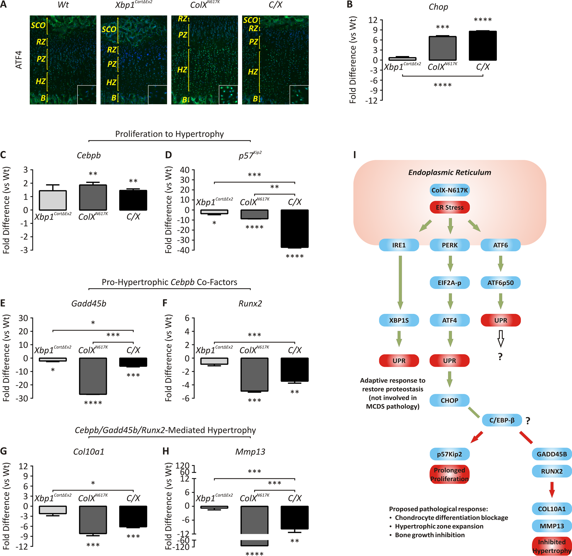 Dysregulated expression of genes involved in ER stress and chondrocyte differentiation.