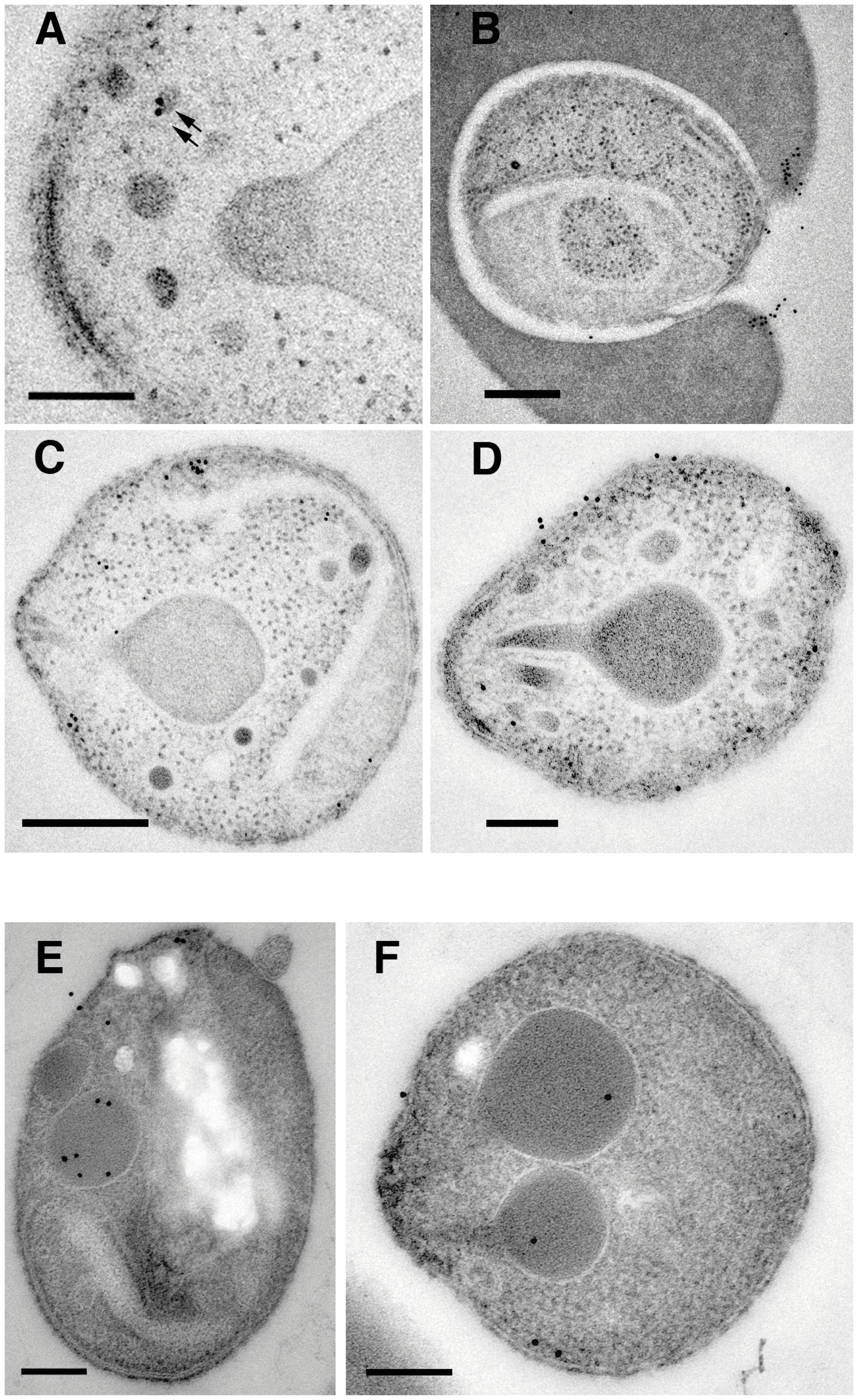 Subcellular localization of PfRipr and PfRh5 by immuno-electron microscopy.