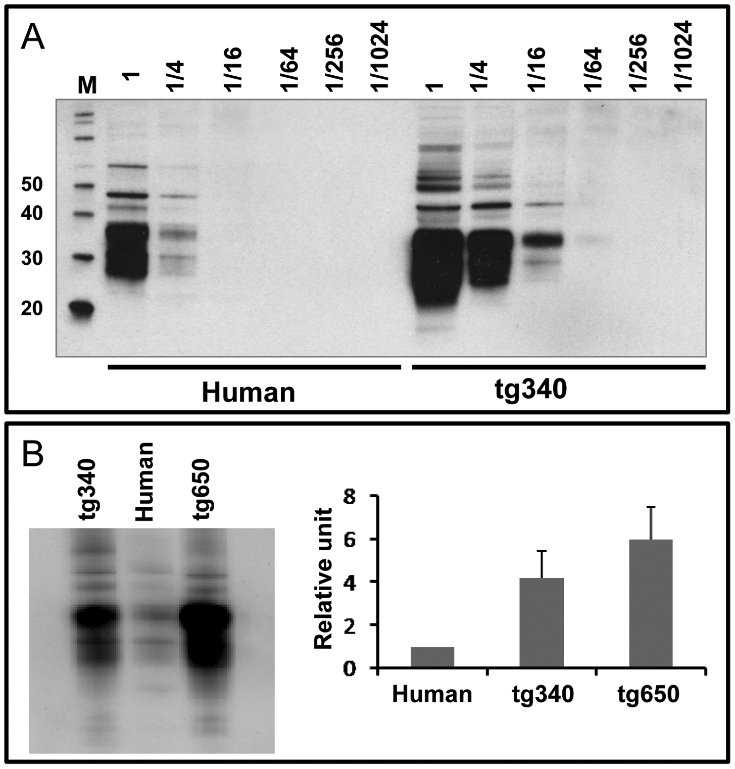 Brain PrP<sup>C</sup> expression in homozygous tg340 mouse line in comparison to both tg650 mice and human brain.