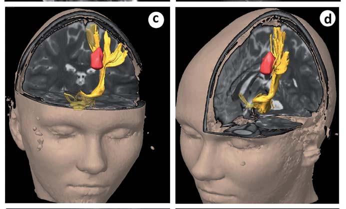 Obr. 5c, d) 3D rekonstrukce DTT, červeně kavernom, žlutě kortikospinální dráha.