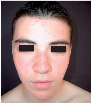 Zlepšení po celkové léčbě isotretinoinem (Foto M. Hašková)
