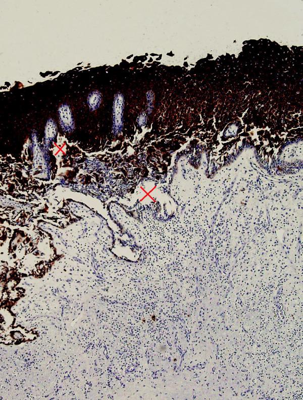 Histologický řez intradermální buly. Barvení na cytochromatin, zvětšeno 100x, křížkem označena místa epidermální akyntolýzy.