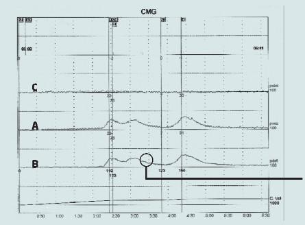 Urodynamický nález idiopatické hyperaktivity detruzoru. Zvýšení tlaku je zaznamenáno křivkou zaznamenávající intravezikální tlak (A) a křivkou zaznamenávající tlak detruzoru (B) bez odpovídajícího zvýšení křivky abdominálního tlaku (C). Tím dochází k mimovolní kontrakci svaloviny detruzoru během plnicí fáze, ve které pacient aktivně inhibuje každou motorickou aktivitu v močovém měchýři.