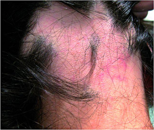 Alopecia areata před léčbou