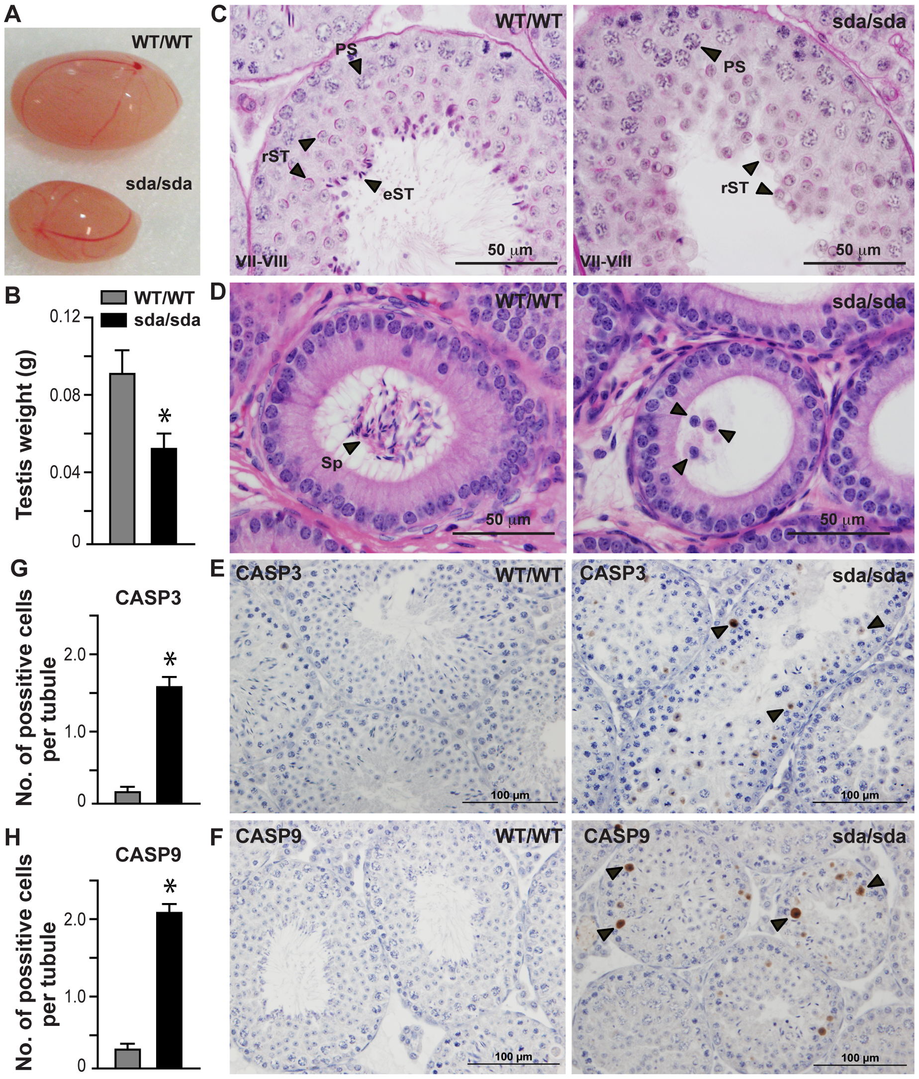 Spermatid differentiation arrest, germ cell sloughing and apoptosis lead to sterility in the <i>Rbm5<sup>sda/sda</sup></i> males.