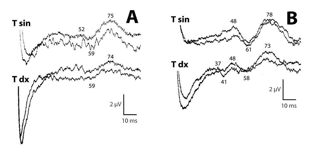 Skalpové SEPs n. tibialis (Cz'-Fz') před operací (a) primární odpovědí vymizelé, pozdní snížené více vpravo. Tři měsíce po uvolnění míchy (b) zvýšení amplitud oboustranně, obnova primární odpovědi vpravo, vlevo nejistě.
