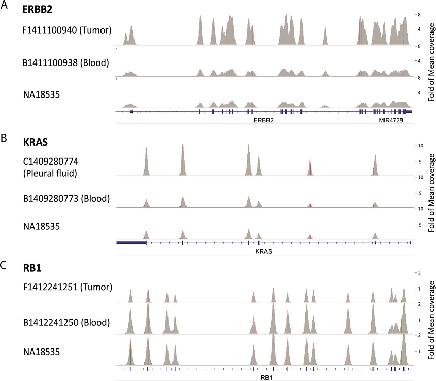 Examples of copy number variations (CNVs) identified by next-generation sequencing (NGS). Sequence alignment data of ERBB2 (A), KRAS (B) and RB1 (C) was viewed by Integrative Genomics Viewer (IGV). Matched blood sample and NA18535 DNA was served as control. RefSeq Gene track was shown at the bottom. Due to the difference in coverage depth, samples are presented at the same fold of mean coverage depth for all matching and normal control samples as labeled on the right.
