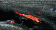 Obr. 5b. Sonouretrografie v kombinaci s barevným dopplerovským vyšetřením. Povšimněte si detailu perfuze při zobrazení pomocí sonouretrografie.