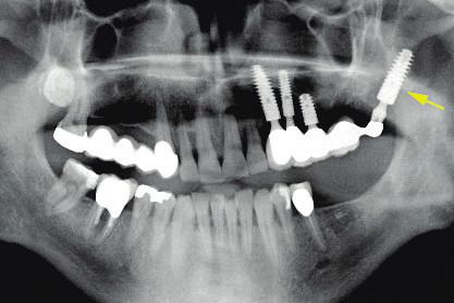 Pterygoidní implantát (šipka) zakotvený v kompaktě pterygoidních výběžků kosti klínové