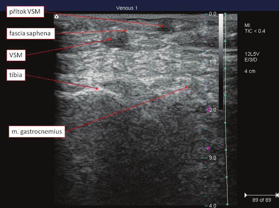 Topograficko-anatomické poměry VSM v oblasti kolene