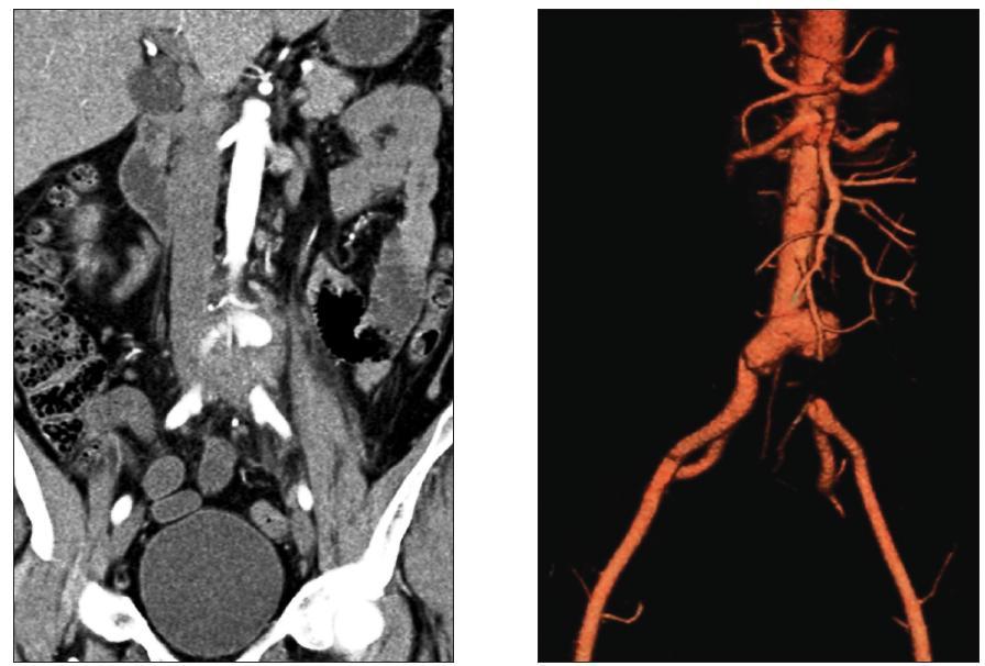 Mykotické aneuryzma bifurkace aorty s přesahem na a. iliaca comm. l. sin. a s jejím tromboembolickým uzávěrem Fig. 2. Mycotic aneurysm of the aortic bifurcation extending to the left common iliac artery with its thromboembolic occlusion