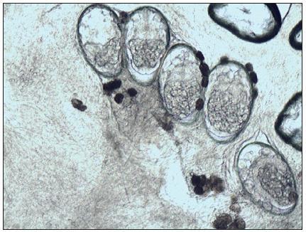 Mikroskopický nález vajíčka s embryami a trus (Danilla T.)