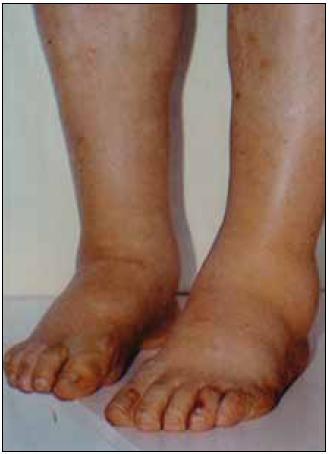 Symetrické otoky dolních končetin jsou typickým projevem nefrotického syndromu, jehož dominantním příznakem je výrazná proteinurie, hypoproteinemie, hypoalbuminemie a symetrické otoky DK. Tato porucha vzniká porušením glomerulární membrány. Nefrotický syndrom může mít velmi mnoho příčin, které však nelze bez biopsie ledviny diagnostikovat, a tedy ani cíleně léčit. Nefrotický syndrom nejasného původu je tedy jasnou indikací k biopsii ledviny.