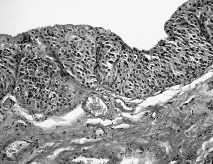 Papilární hyperplazie přecházející v LG papilokarcinom. V jednom místě ve vrcholu papily drobná céva (HE, 100krát)