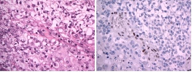 A Atypický teratoidní/rhabdoidní tumor (AT/RT), WHO grade IV. Nádor převážně sestává ze solidně alveolárně uspořádaných polygonálních buněk se světlou nebo jemně eozinofilní cytoplazmou. Fokálně jsou přítomny výrazné atypie, proliferační aktivita byla vysoká. (hematoxylin-eozin, originální zvětšení x400). B Imunohistochemický průkaz proteinu INI1 je v nádorových buňkách negativní (při pozitivní vnitřní kontrole v endoteliích, originální zvětšení x400). Image 4 A: Atypical teratoid-rhabdoid tumor (AT/RT), WHO grade IV. Polygonal cells with pale or slightly eosinophilic cytoplasm arranged in alveolar pattern. High proliferation aktivity. (H&E x400) Image 4 B: Imunohistochemical negativity of INI1 protein in tumour cells (retained positivity in endothelial cells, x400)
