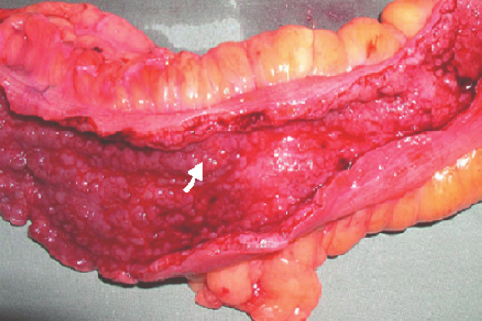 Karcinom sigmoidea v terénu UC – místo označeno šipkou