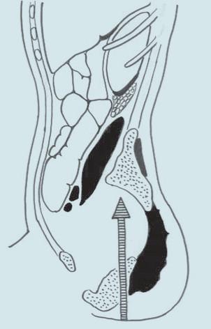 Decelerační mechanizmus traumatu ledviny.