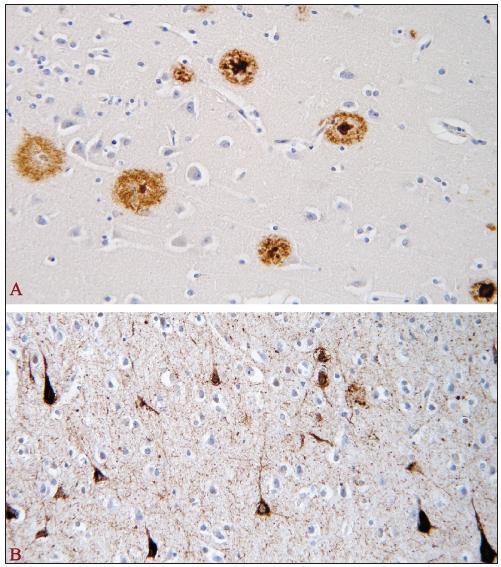 Amyloidové senilní plaky a neurofibrilární klubka u AN [18]. Amyloidové senilní plaky v hipokampální formaci pozitivní v imunohistochemické reakci s monoklonální protilátkou proti amyloid-β proteinu (A) a neurofibrilární klubka (tangles) v hipokampální formaci pozitivní v imunohistochemické reakci s monoklonální protilátkou proti hyperfosforylované formě tau-proteinu (B) u AN
