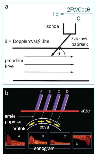 Schéma 8 a,b. Dopplerův úhel se rovná úhlu dopadu mezi ultrazvukovým paprskem a odhadovaným směrem proudění krve (a). Dopplerovo ultrazvukové vyšetření přesně měří velocitu (rychlost a směr pohybu) pouze v Dopplerovských úhlech 0 ° a 180 °.