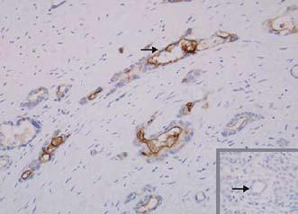 Exprese mezotelinu. Mezotelin je selektivně exprimován buňkami karcinomu pankreatu, exprese v normálním pankreatu není přítomna (vpravo dole). Fig. 3. Mesothelin expression. Mesothelin is expressed selectively in pancreas cancer cells, expression is not found in normal pancreas (bottom right).