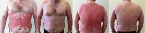 Pacient s metabolickým syndrómom s ťažkou formou psoriázy pred liečbou a po 3 mesiacoch liečby preparátom skupiny anti-TNFα – adalimumabom