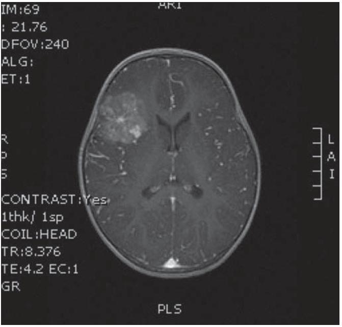 MR v koronární rovině s intraaxiálním tumorem.