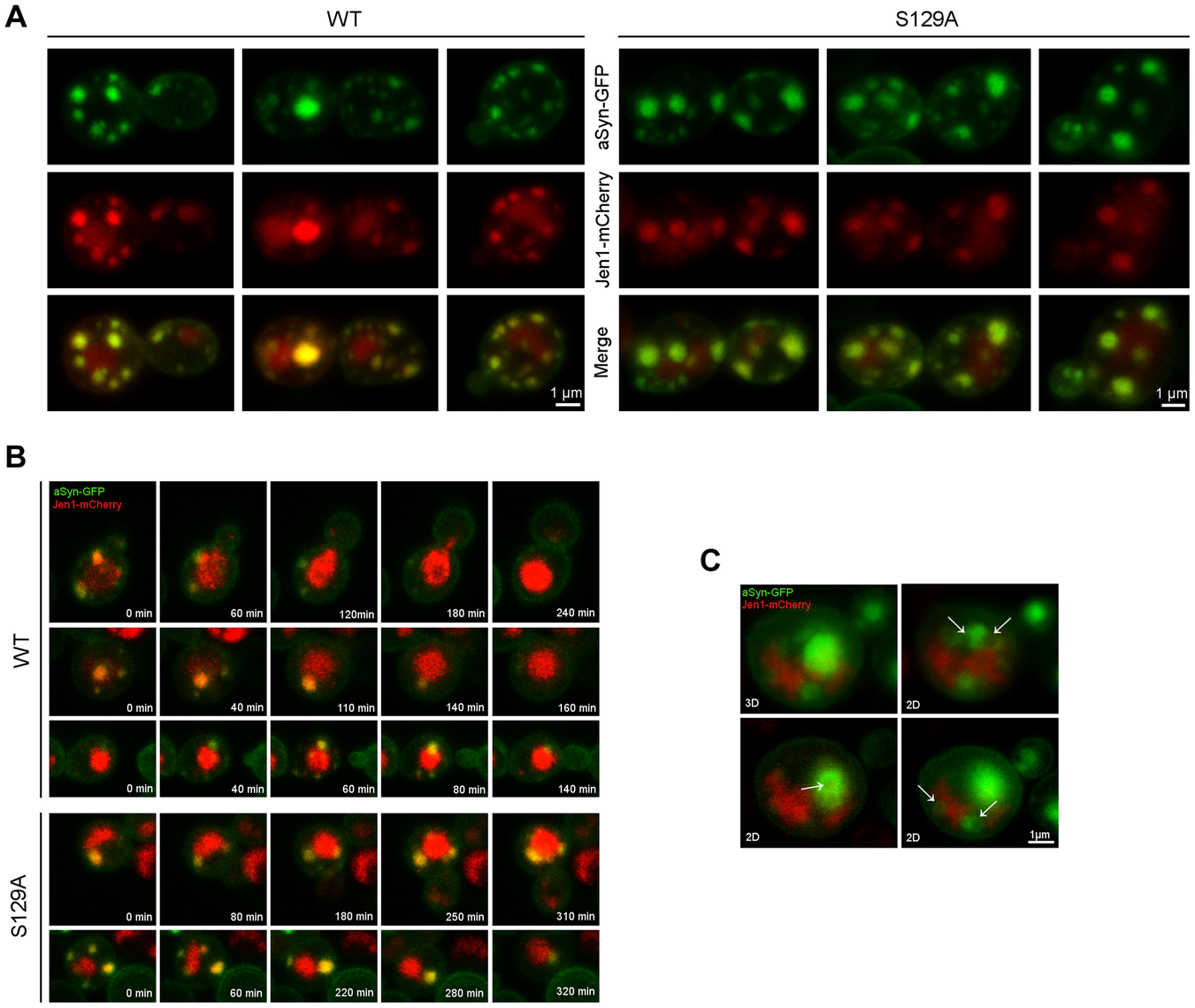 Plasma membrane to vacuole endocytic trafficking of WT and S129A aSyn.