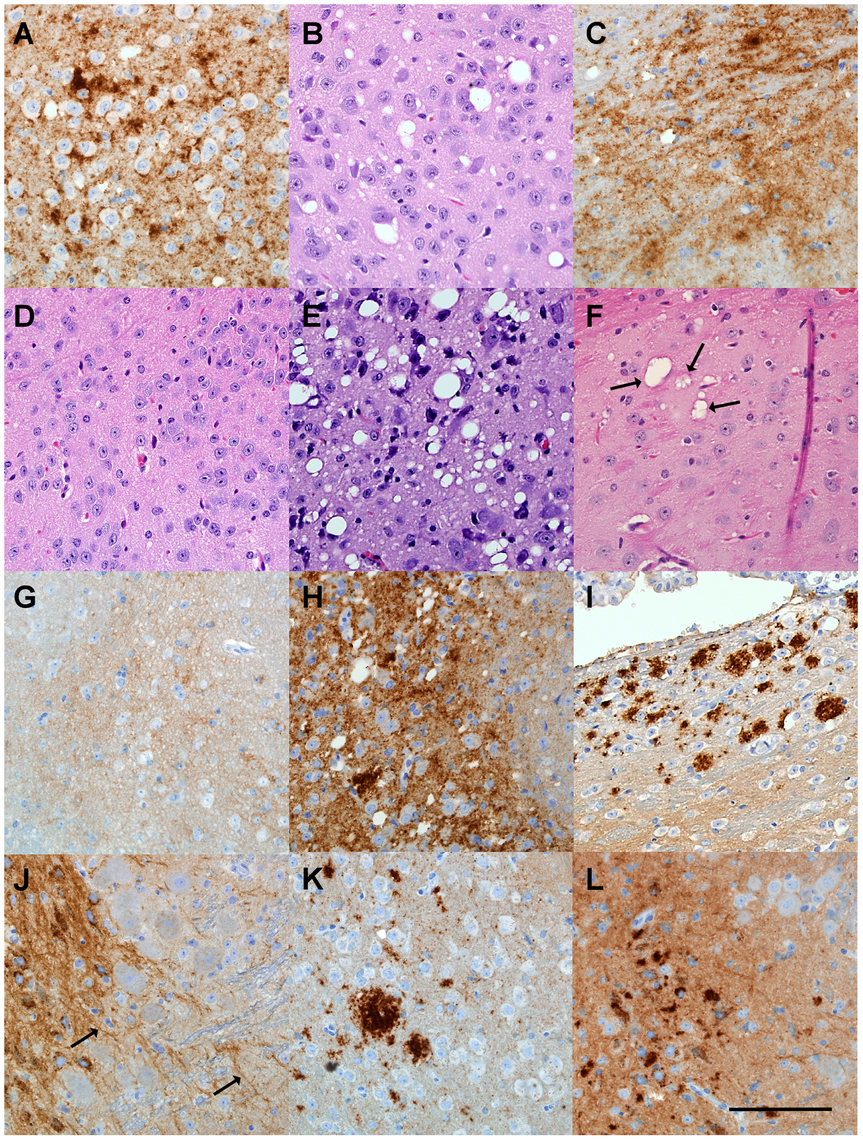 Histopathological analysis of brain tissue from transgenic mice inoculated with various scrapie strains.