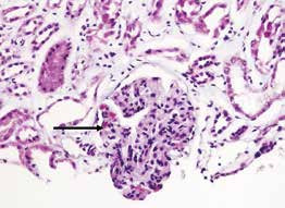 Fibrinové tromby v kapilárních kličkách u mikroangiopatie v rámci trombotické trombocytopenické purpury (TTP) u SLE jsou zvýrazněné speciálním barvením (modrý trichrom), tromby jsou zbarveny červeně (šipka), zvětšení 200× (snímek poskytnut MUDr. T. Tichým, Ústav klinické a molekulární patologie FN a LF UP Olomouc)