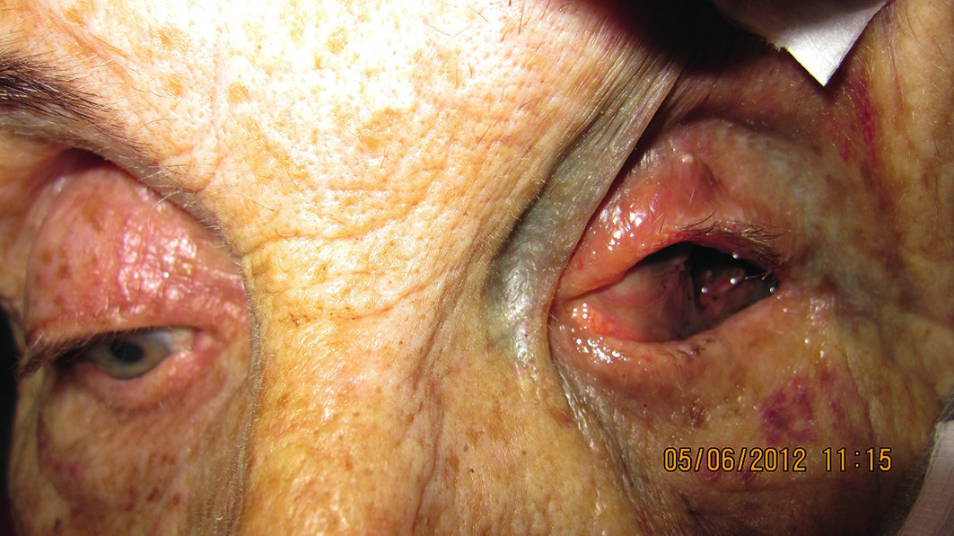 Klinický obraz pacientky po enukleácii s masami melanómu v hrote očnice a infiltráciou mäkkých tkanív s mikrometastázami
