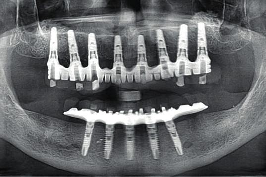 Vertikální implantáty orientované paralelně