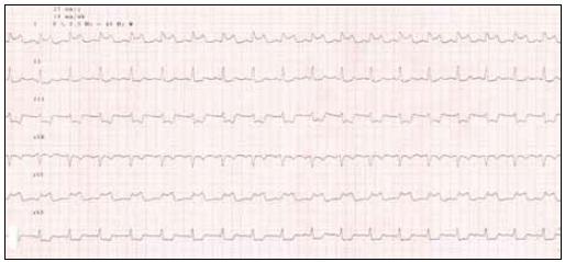 EKG končetinové svody, pozitivní nález při hyperventilačním testu.