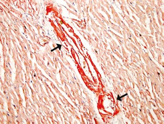 Depozita amyloidu ve stěně arteriol myokardu levé srdeční komory (u šipek).
