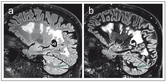 Srovnání sekvencí 3D FLAIR (fluid attenuated inversion recovery) (a) a DIR (double inversion recovery) (b) u pacienta s pokročilým postižením v rámci roztroušené sklerózy. Fig. 2. Comparison of 3D FLAIR (fluid attenuated inversion recovery) (a) and DIR (double inversion recovery) (b). Sequences in a patient with advanced multiple sclerosis disability.