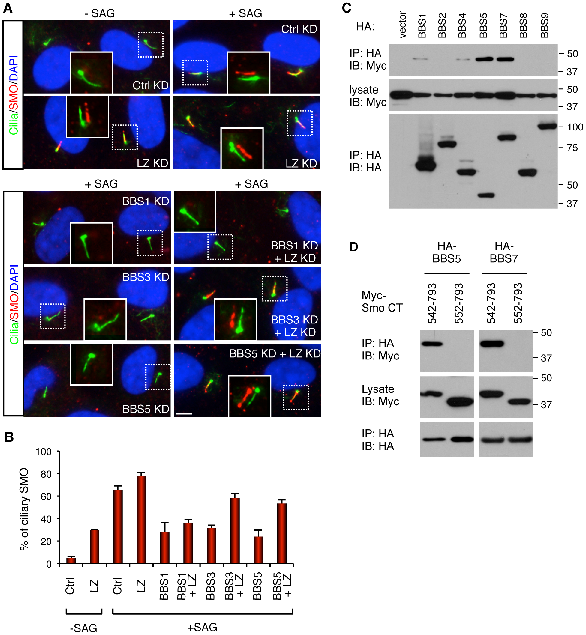 BBSome and LZTFL1 regulate SMO ciliary trafficking.
