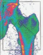 Denzitometrické vyšetření bederní páteře a proximálního femoru.