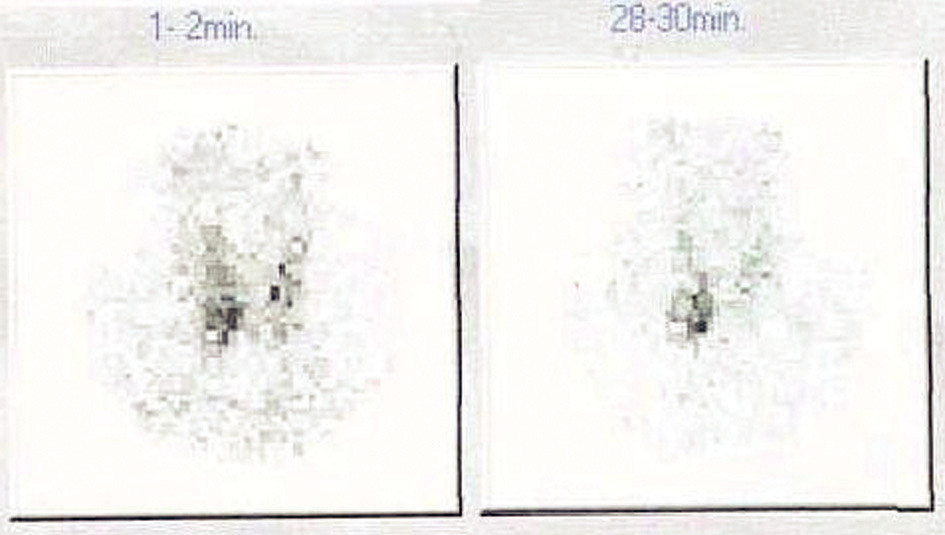 Scintigrafie 99mTc-MIBI.