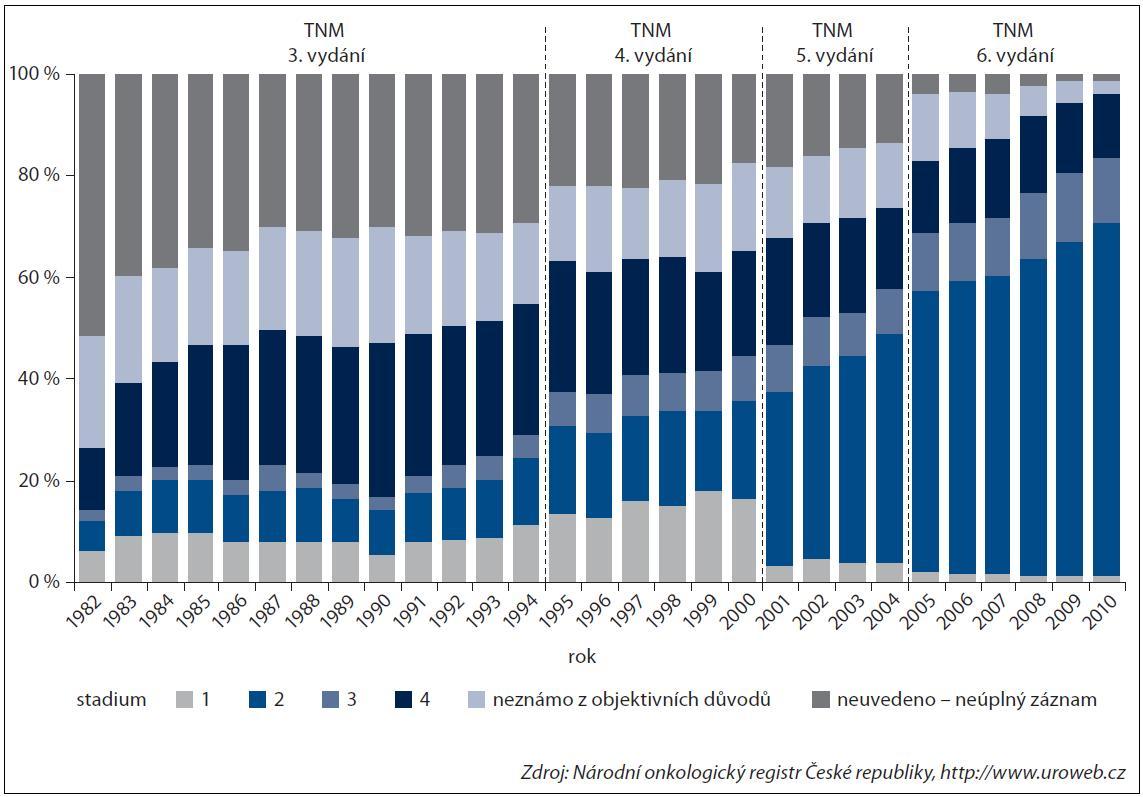 Změna zastoupení stadií ZN prostaty.