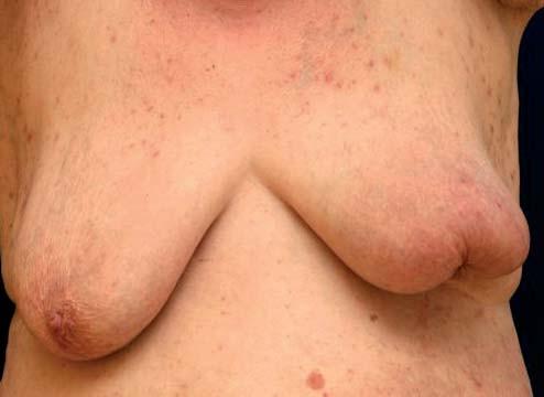 Výrazné vtažení levé mamily při lokálně pokročilejším karcinomu.