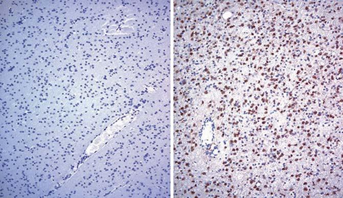 Imunohistochemická detekce buněk astrocytomu grade III pozitivních na IDH1-R132H mutaci (vpravo) a vzorku nádoru bez této mutace pro srovnání (vlevo). Převzato z [21].